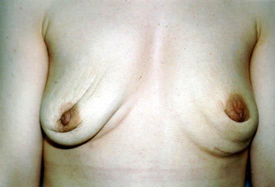 Уродливая грудь фото 94835 фотография